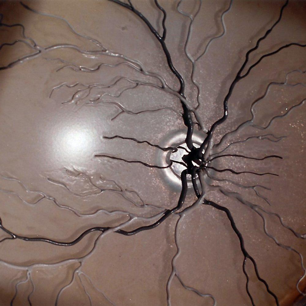 Auge 10:1 Augenhintergrund
