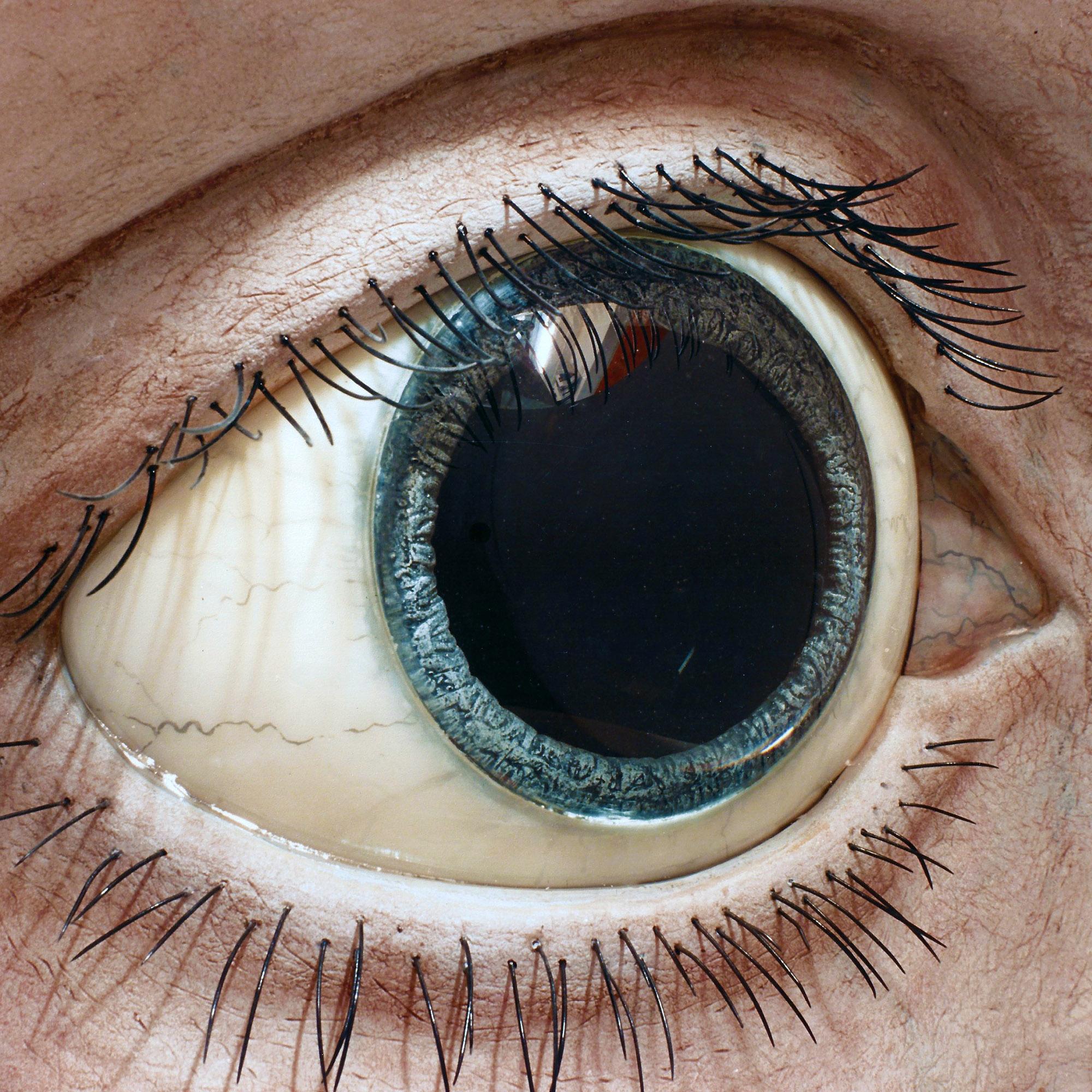 Auge 10:1